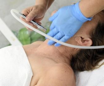 Efekty po zabiegu mezoterapii igłowej