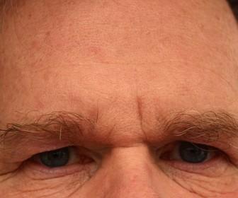 Skuteczne leczenie nadpotliwości czoła i owłosionej skóry głowy